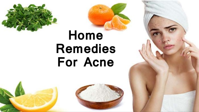 home remedies for acne skin